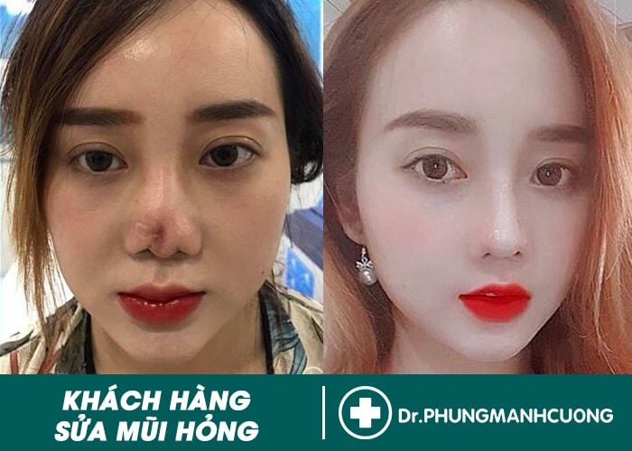 hình ảnh khách hàng trước sau phẫu thuật